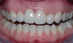 Dentists in North County San Deigo