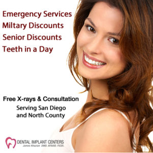 Dental Implant Pricing