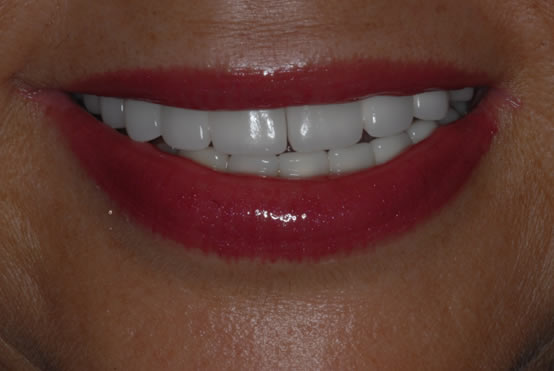 Cosmetic Dentistry Dental Implants Broken Teeth