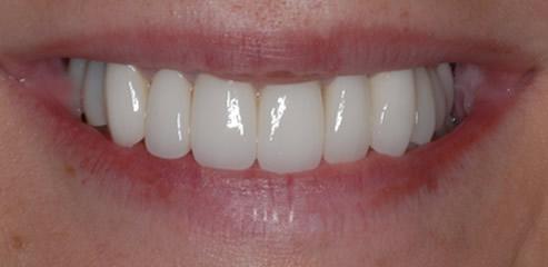 missing-teeth-surgery san diego dentists