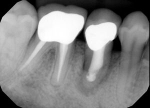 Broken tooth repair San Diego Dentist