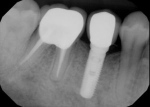 Broken tooth repair Escondido Dentist