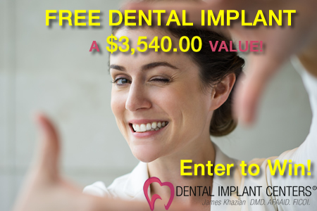 Enter to win Free Dental Implants