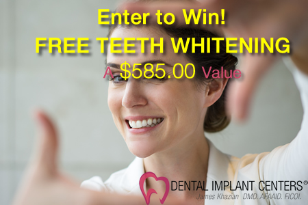 Win free dentist teeth whitening